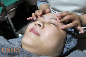 Acupressure agar otot wajah rileks