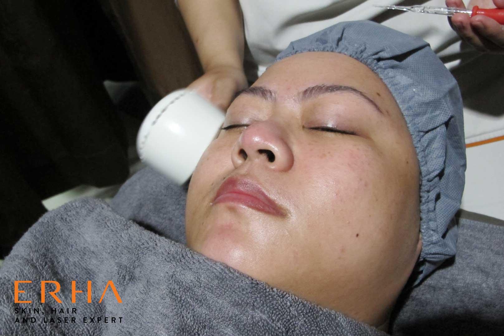 Brightening serum meresap maksimal dengan bantuan alat ultrasound