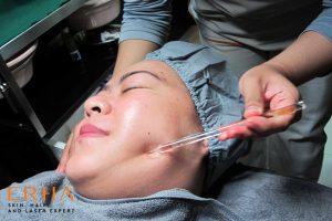 Mengecek sensitivitas kulit wajah sebelum facial treatment