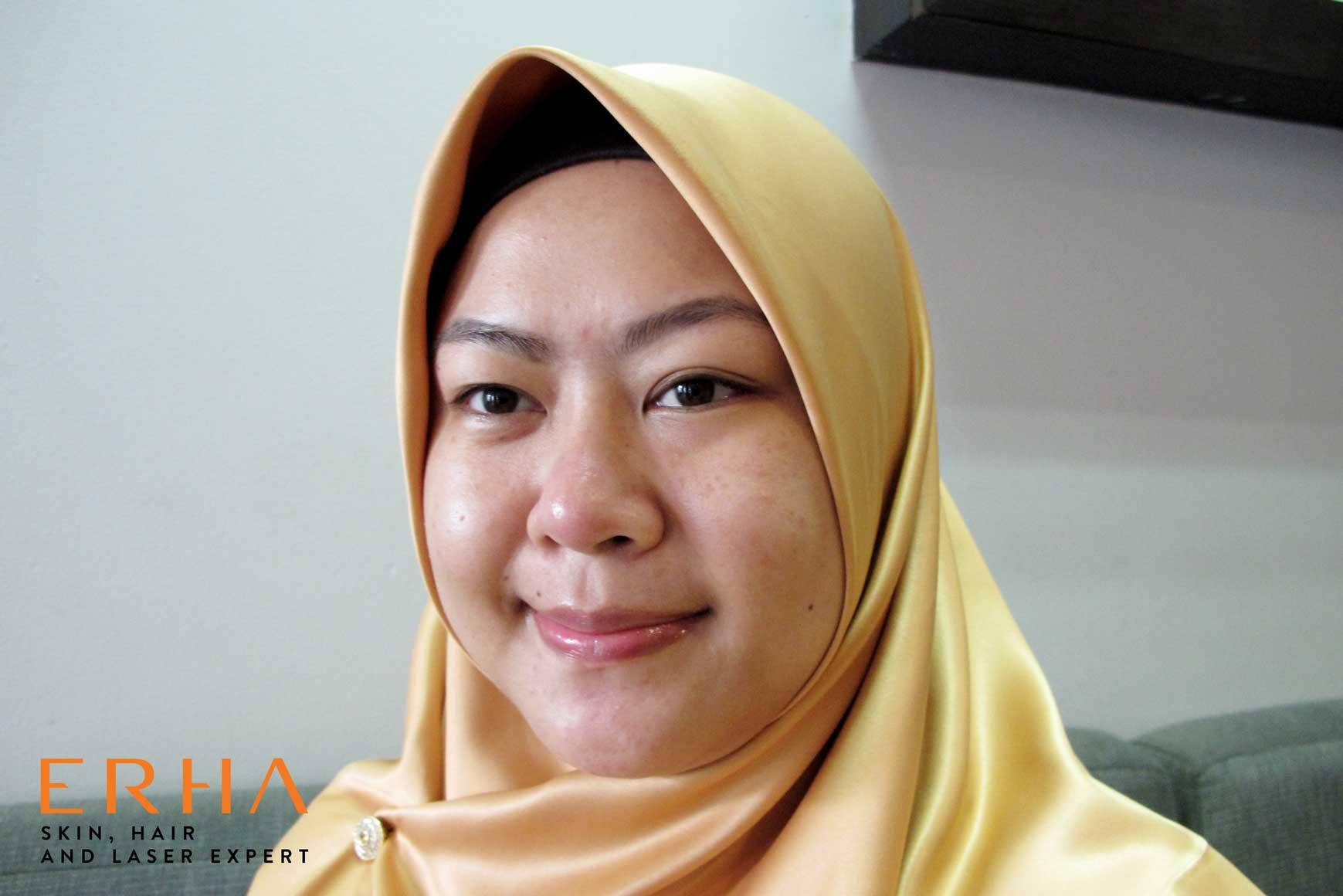 Wajah glowing setelah perawatan facial Signature DPCT